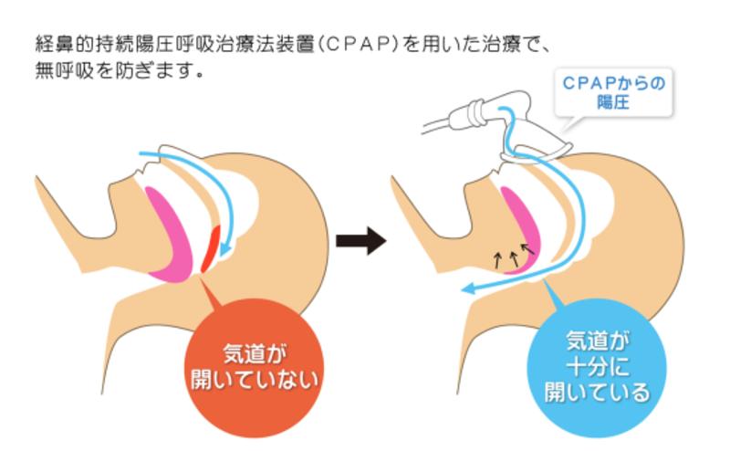 CPAP療法の装置について2